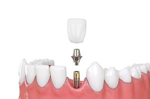 dental implants van nuys ca