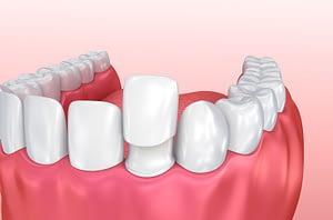 cosmetic dentistry pismo beach ca