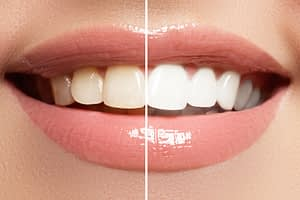 teeth whitening and cosmetic dentistry in arroyo granda ca