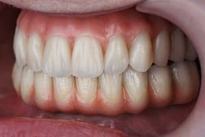 Why Do the Costs of Dental Implants Vary So Much?