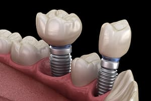 Dental Implants In Your Mouth