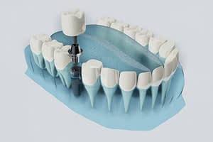 dental implants dana point ca