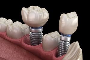 Model Of 2 Single Dental Implants