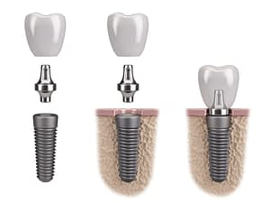 Lowdown on Dental Implants