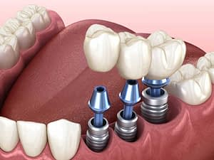 a diagram of three dental implants being placed