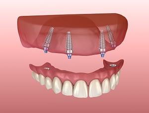 implant supported dentures in Phoenix, AZ
