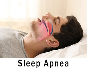 Managing Sleep Apnea