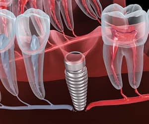 myths about dental implants busted