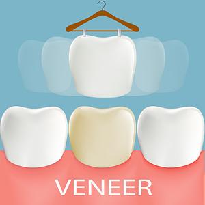 Dental Veneer
