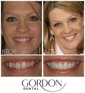 young female patient Before and After veneers Kansas City, MO