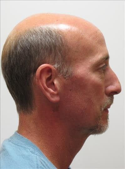 Chin Augmentation - after - Baton Rouge Oral and Facial Surgery & Dental Implant Center - Baton Rouge, LA