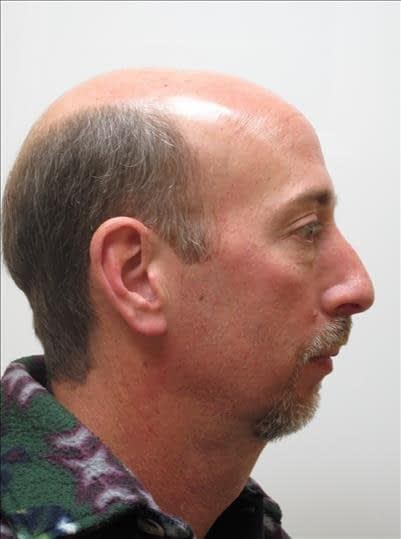 chin-augmentation - before -- Baton Rouge Oral and Facial Surgery & Dental Implant Center - Baton Rouge, LA
