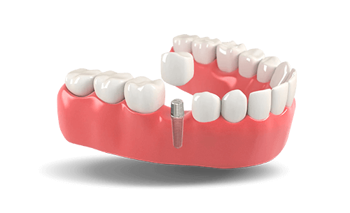 Dental implants model