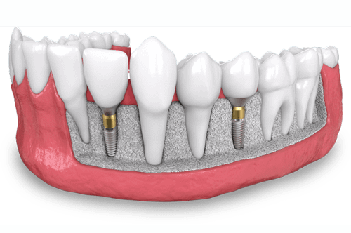 a model showing two placed dental implants