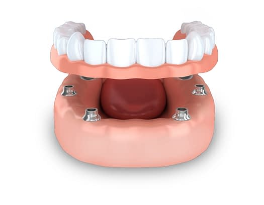 lower implant supported dentures model