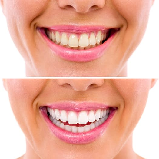 teeth whitening before and after Tavares, FL