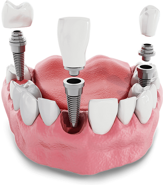dental implants model Tavares, FL