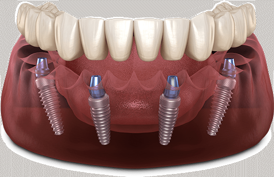 full arch dental implants model