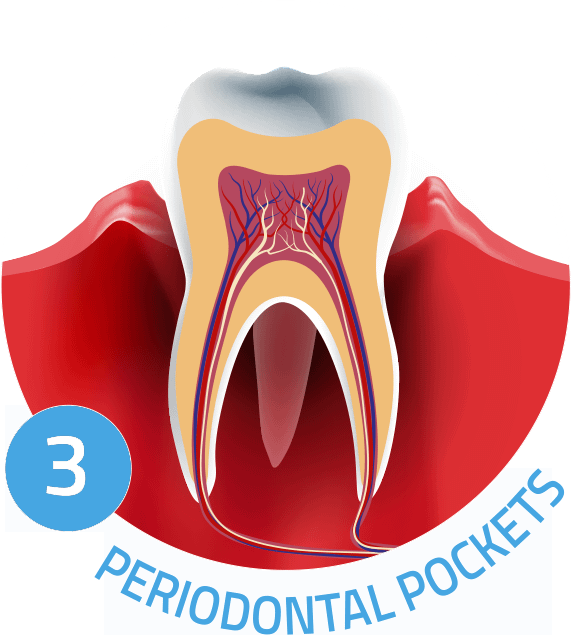 periodontal pockets graphic Chula Vista CA
