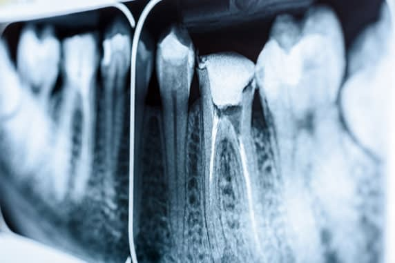 root canal xray St. Johns, MI
