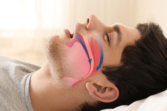 sleep apnea graphic St. Johns, MI
