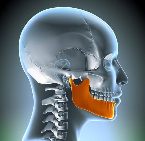 jaw bone graphic St. Johns, MI