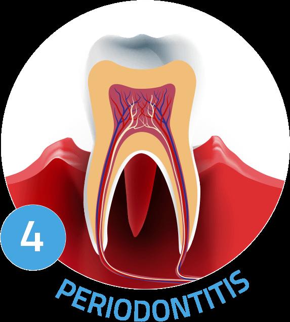 periodontitis graphic Chula Vista CA