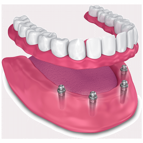 implant supported dentures model Chula Vista CA
