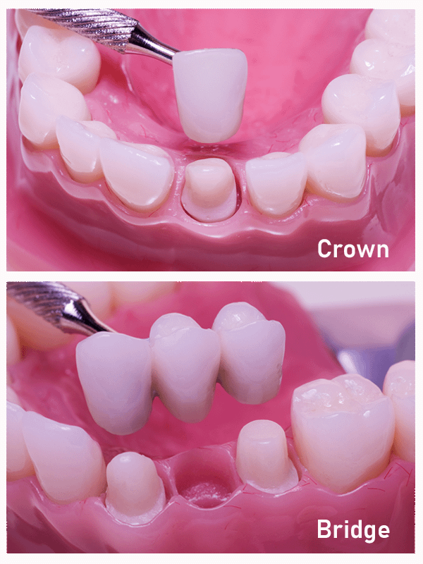 dental crown and bridges model MONTCLAIR, NJ