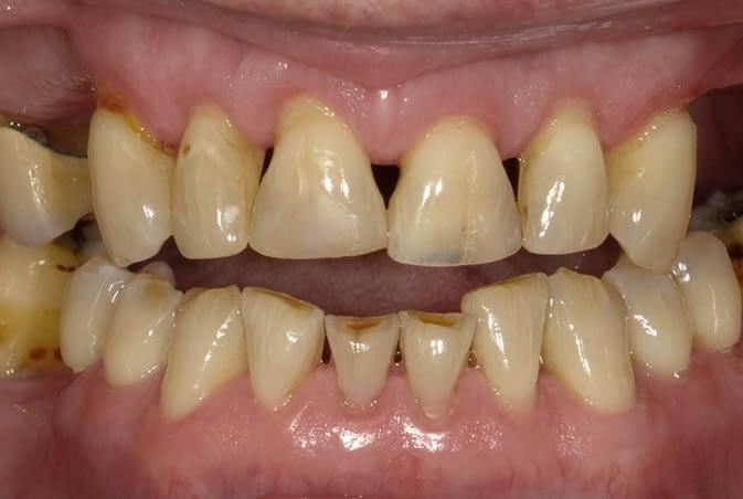 cosmetic bonding and hybrid denture before ALLEN, TX