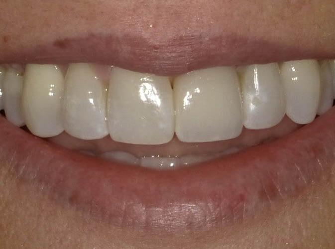 dental crown after ALLEN, TX