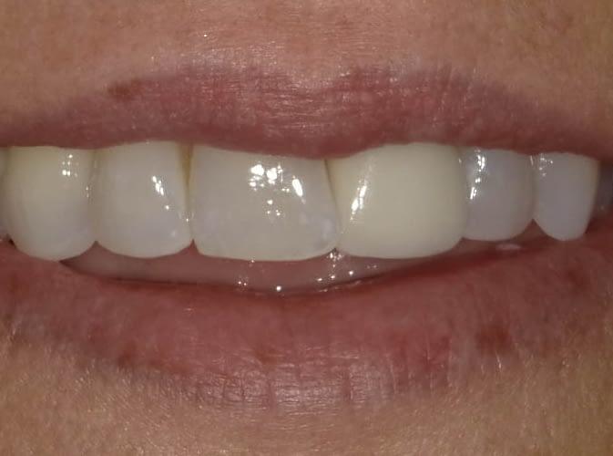 dental crown before ALLEN, TX