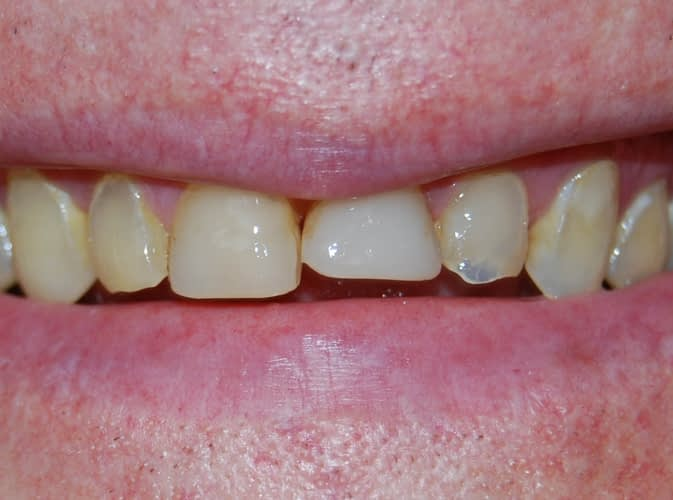 Extreme wear on upper teeth and after crown on upper teeth ALLEN, TX