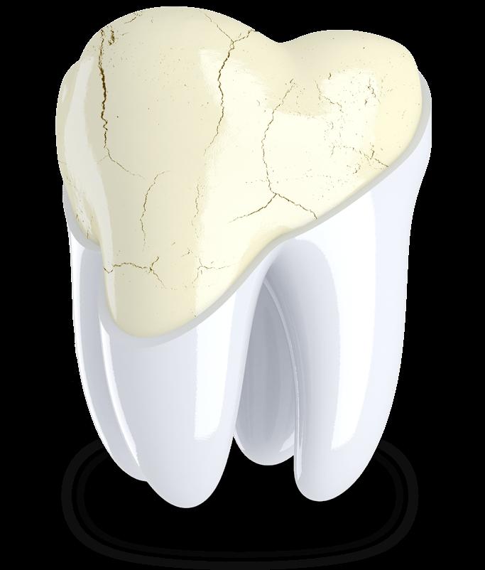 cracked tooth model Arroyo Grande, CA