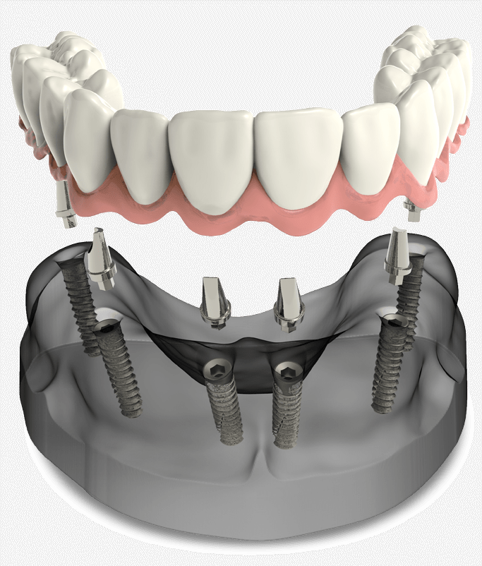full arch dental implant model Arroyo Grande, CA