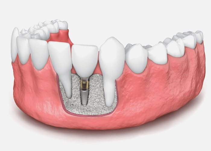 bone graft for dental implant model Brownstown, MI
