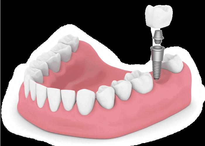 dental implant model Brownstown, MI