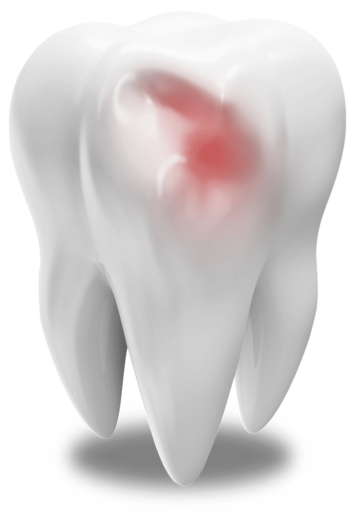 damaged tooth model MONTCLAIR, NJ