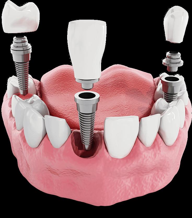 dental implants model Arroyo Grande, CA
