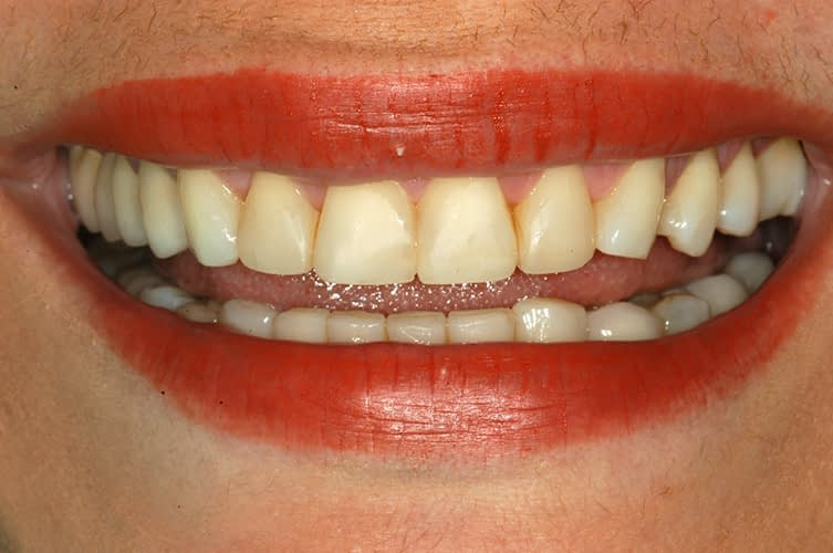 Smile Before Porcelain Veneers - San Juan, PR