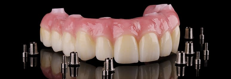Prettau Zirconia bridges