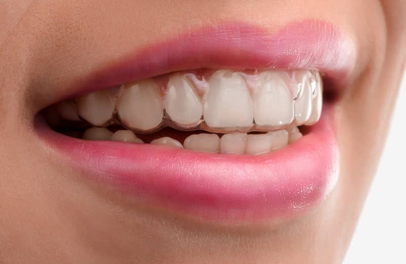 dental patient wearing invisalign Chula Vista CA