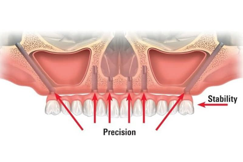 zygomatic implants graphic