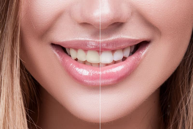 Tooth Whitening Patient Before And After