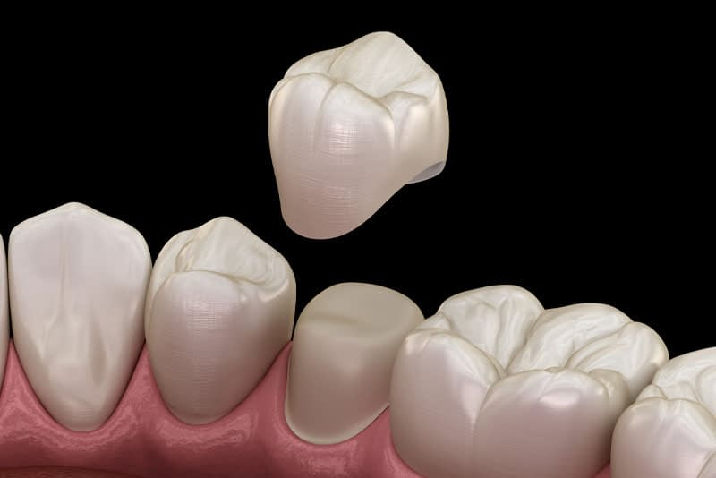Dental Crown Model