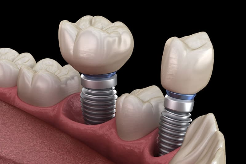 How Dental Implants Look In Your Mouth
