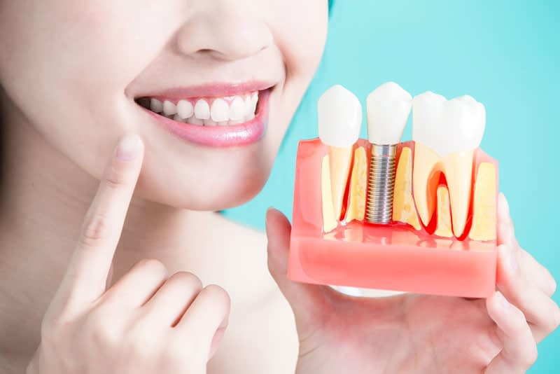 Dental Patient Holding Up Model Of Dental Implants
