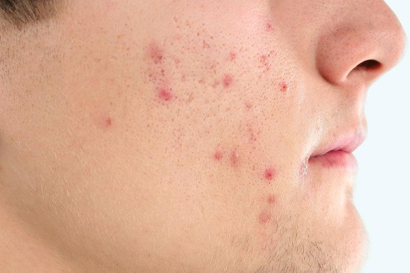 acne patient