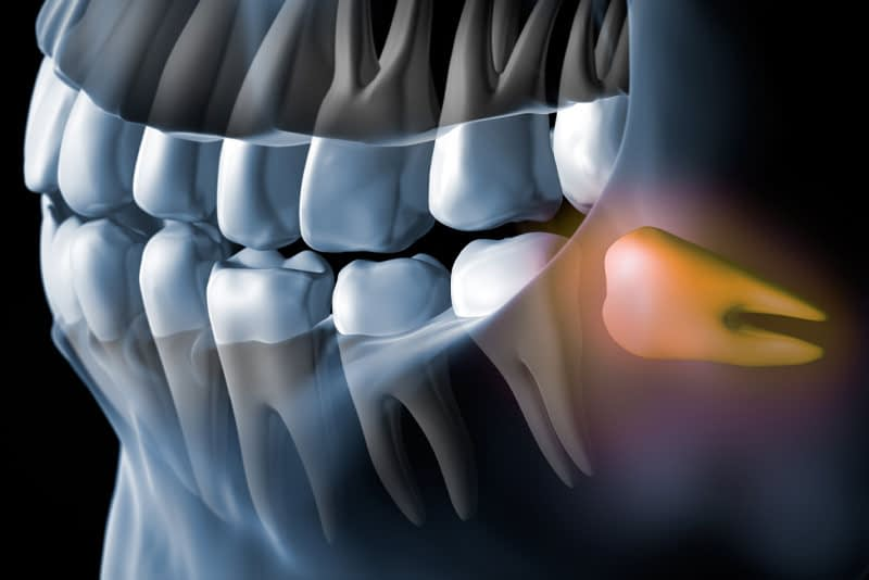 impacted wisdom teeth graphic