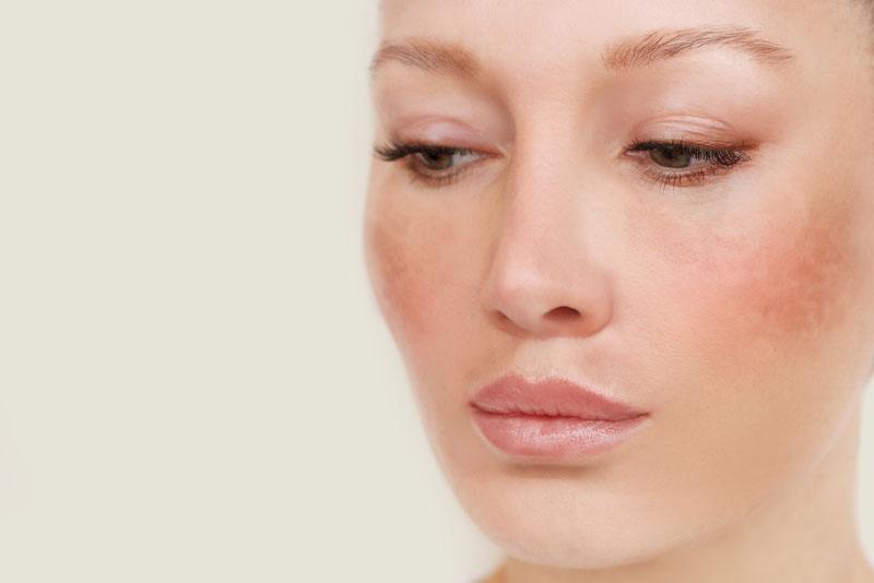 patient suffering from hyperpigmentation